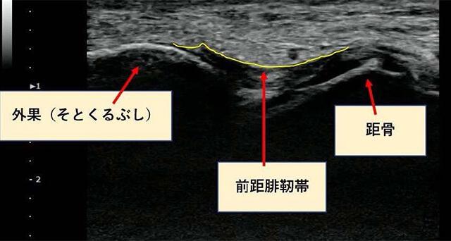 足首のエコー画像