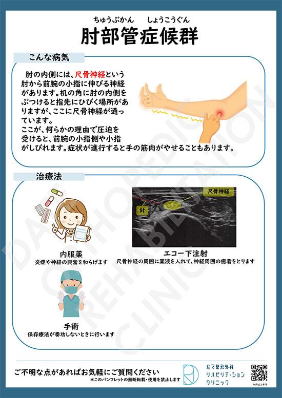 【画像】肘部管症候群について