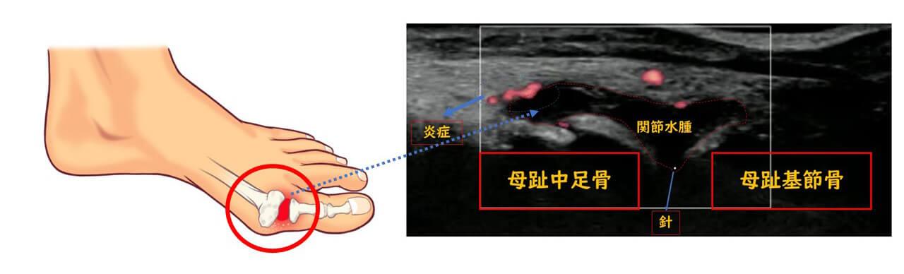 【画像】母趾MTP関節(中足骨と基節骨間)にステロイド入りの注射
