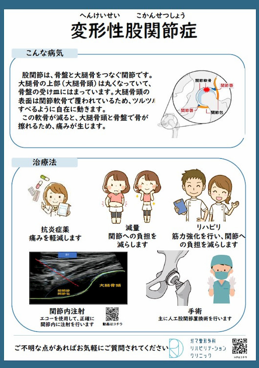 【画像】変形性股関節症について