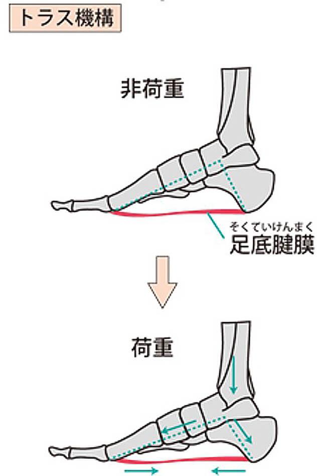 【画像】足底腱膜炎