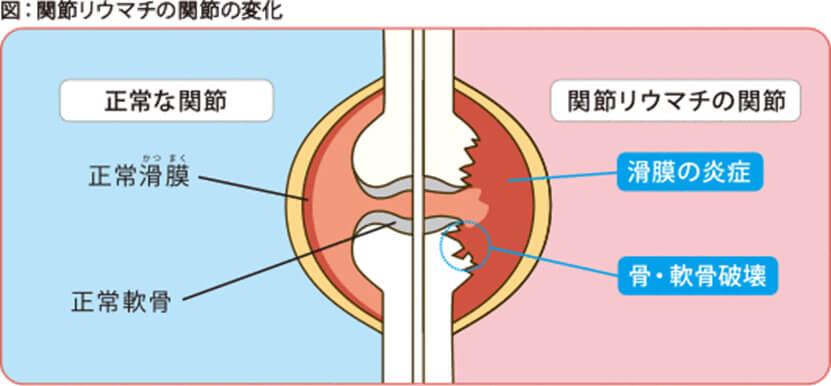 図:関節リウマチの関節の変化