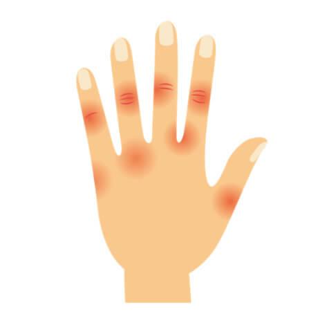 図:指の第2・3関節が腫れたり・痛む指が握り込みにくい