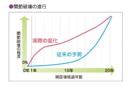 図:関節破壊の急速に進行