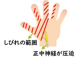 【画像】手根管症候群の症状