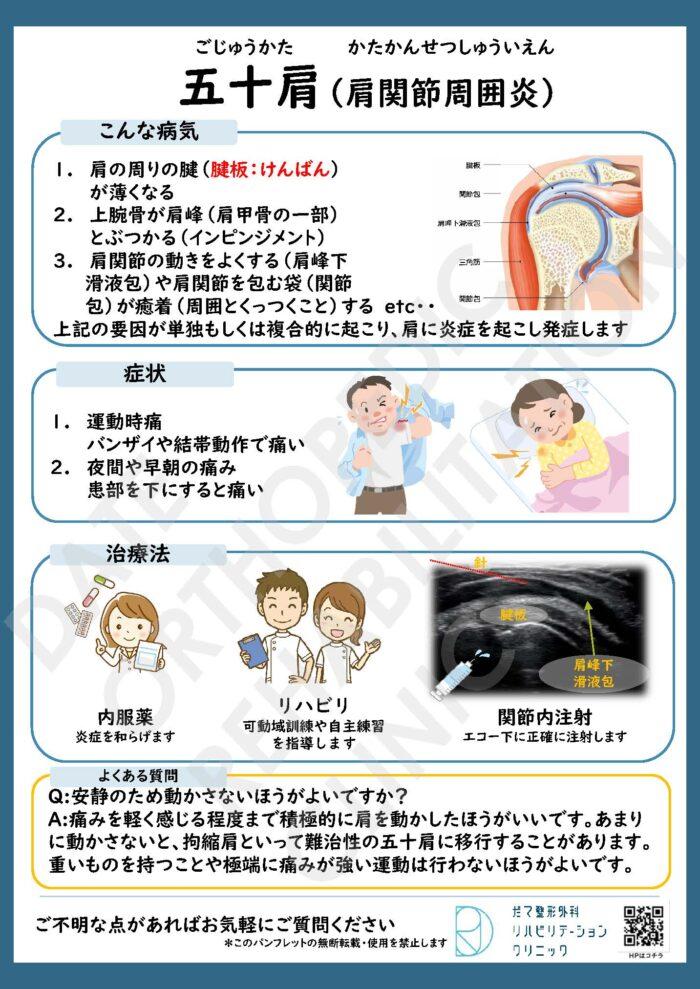 肩関節周囲炎(五十肩)